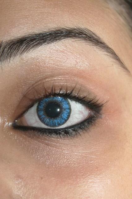 Verklebte Augen durch Kontaktlinsen