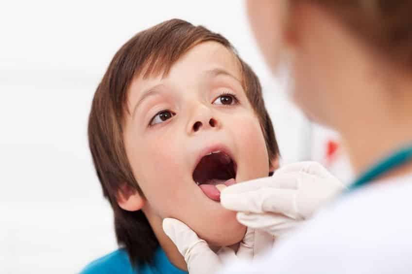 Bild Arzt untersucht Zunge
