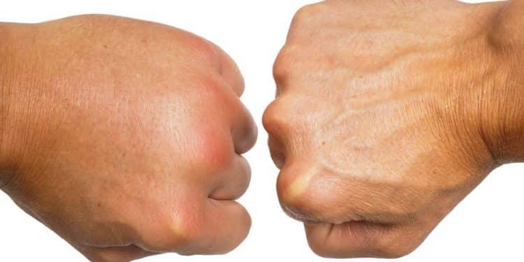 Linke Hand Juckt