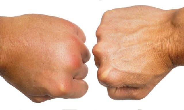 geschwollenes handgelenk