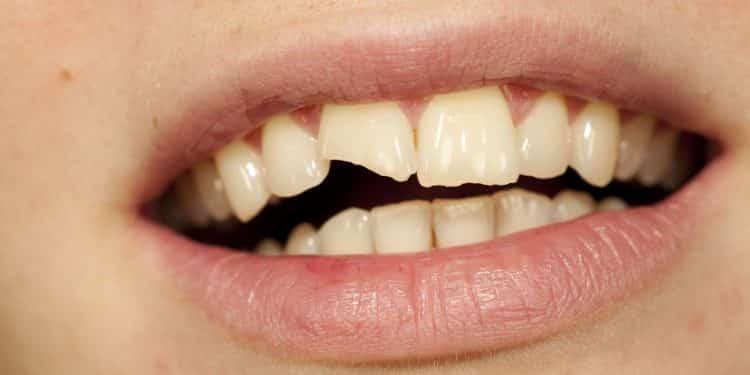 Bild abgebrochener Zahn