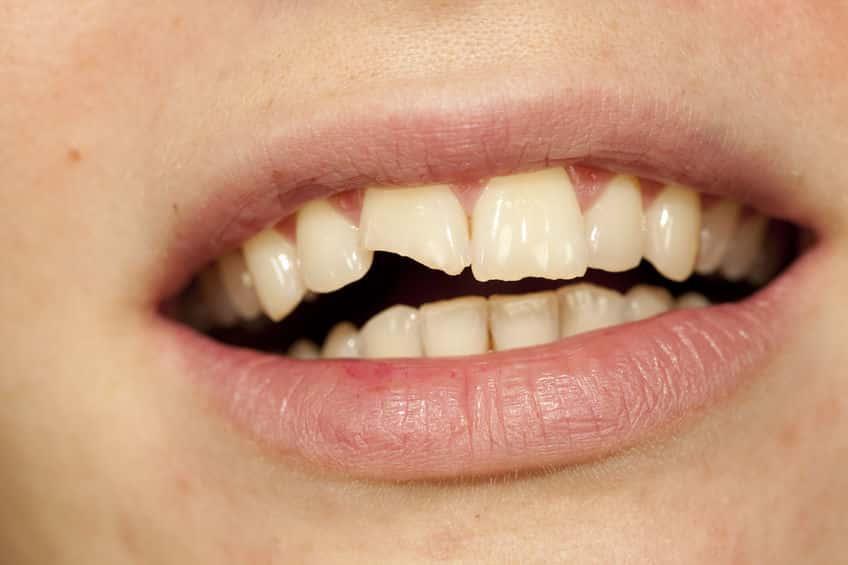 Mini Stück Zahn Abgebrochen